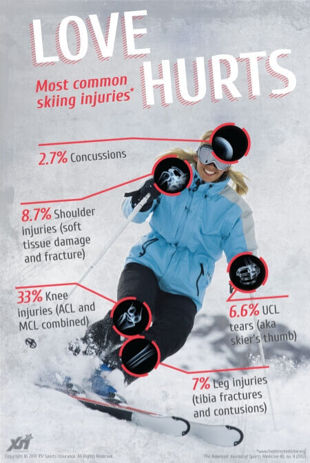 1Skiing1 Skiing and Your Knee: Don't Blow It. Part I